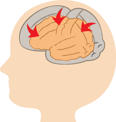 多量の飲酒は脳が委縮する!?